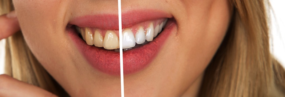 Tips for natural teeth whitening