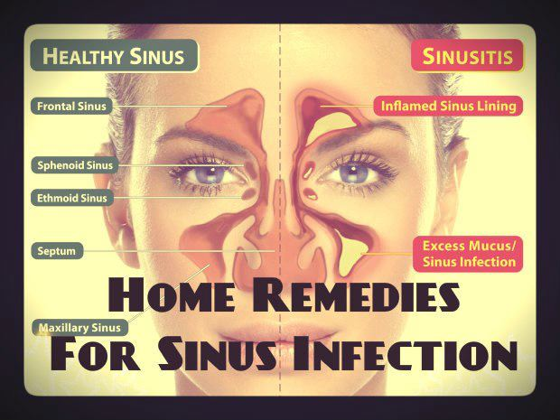 Natural Remedies For Sinusitis And Allergies