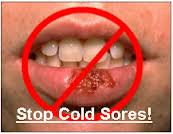 stop cold sore with natural herbal remedies
