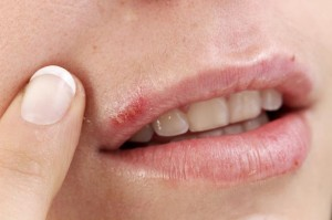 Cold sores - natural remedies