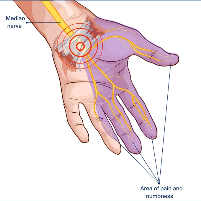 Symptoms of Carpal Tunnel Syndrome