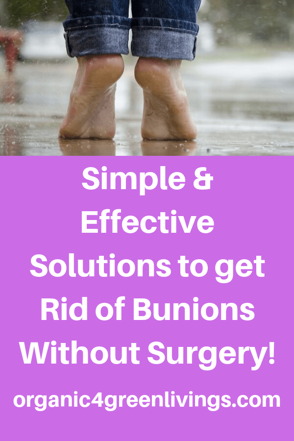 natural ways to get rid bunions